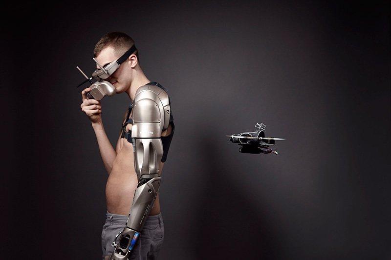 3D printed arm