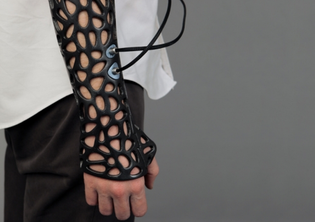 These 3D Printed Casts Can Heal Your Bones 40-80% Faster